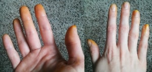 Turmeric Hands
